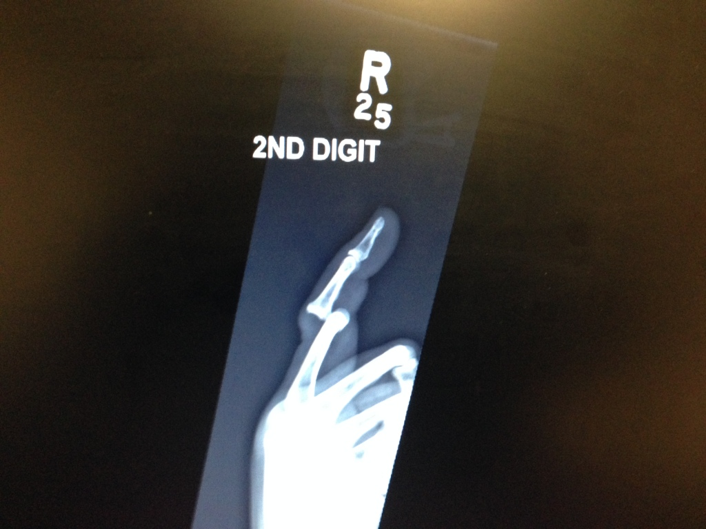 Dislocated finger